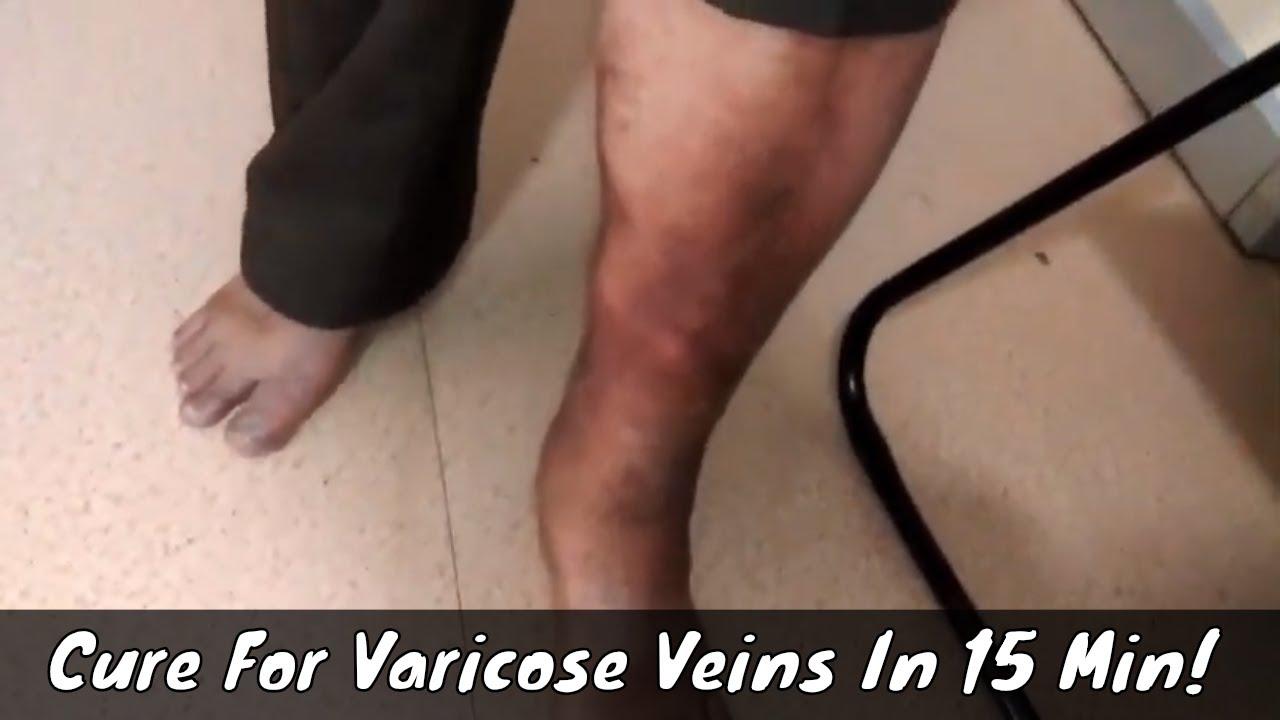hijama varicose foot