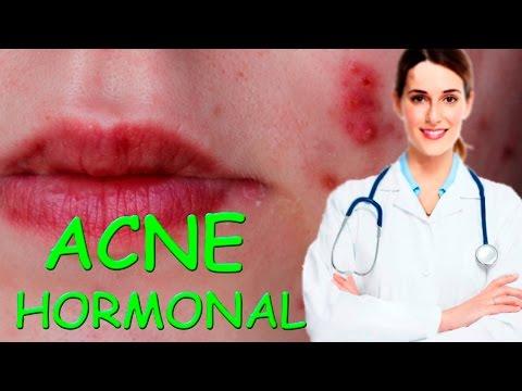 hqdefault - Acne Cremas El Hormonal Para