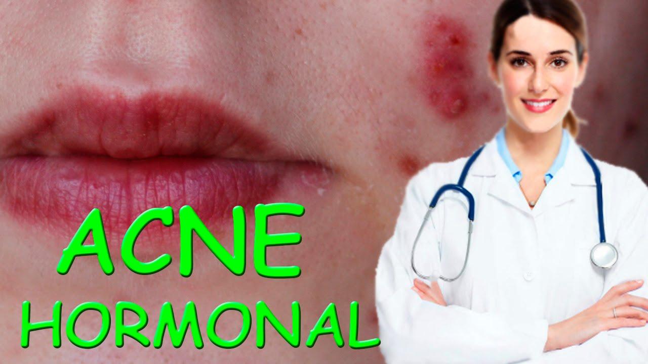 Acne por problemas hormonales