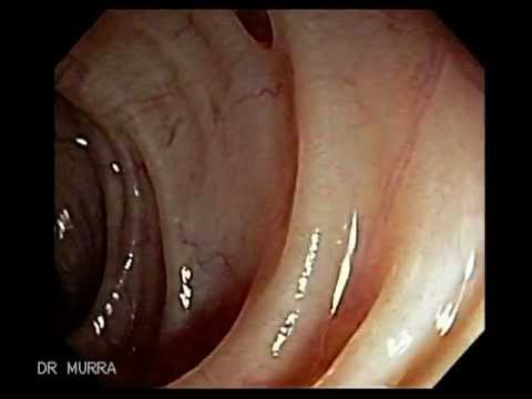 Colonoscopy Of Diverticular Disease Youtube