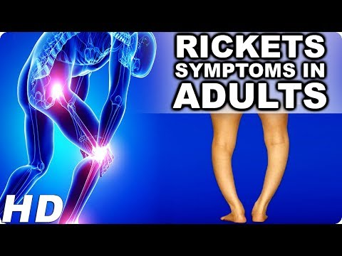 Rickets Symptoms In Adults In Hindi|How To Prevent Rickets|Rickets Treatment Guidelines|How To Cure.