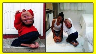 38-летний Клаудио Виейра Де Оливейра-Человек с Перевернутой  Головой на 180 градусов!