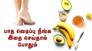 Get rid of Cracked Heels Permanently   Nature Nurture