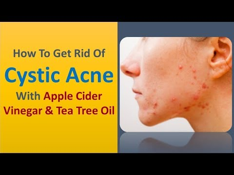 how-to-get-rid-of-cystic-acne-with-apple-cider-vinegar-&-tea-tree-oil