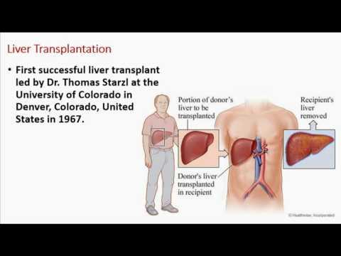 First Organ Transplantation In The Modern World