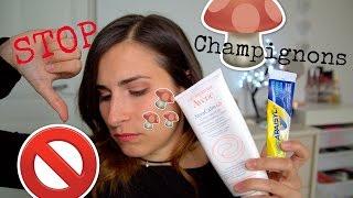 Des champignons sur le visage : Problèmes de peau, ma solution