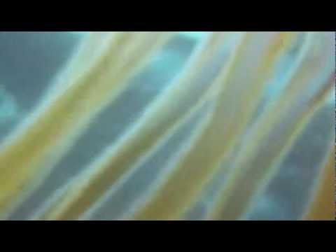 Jellyfish (disambiguation)