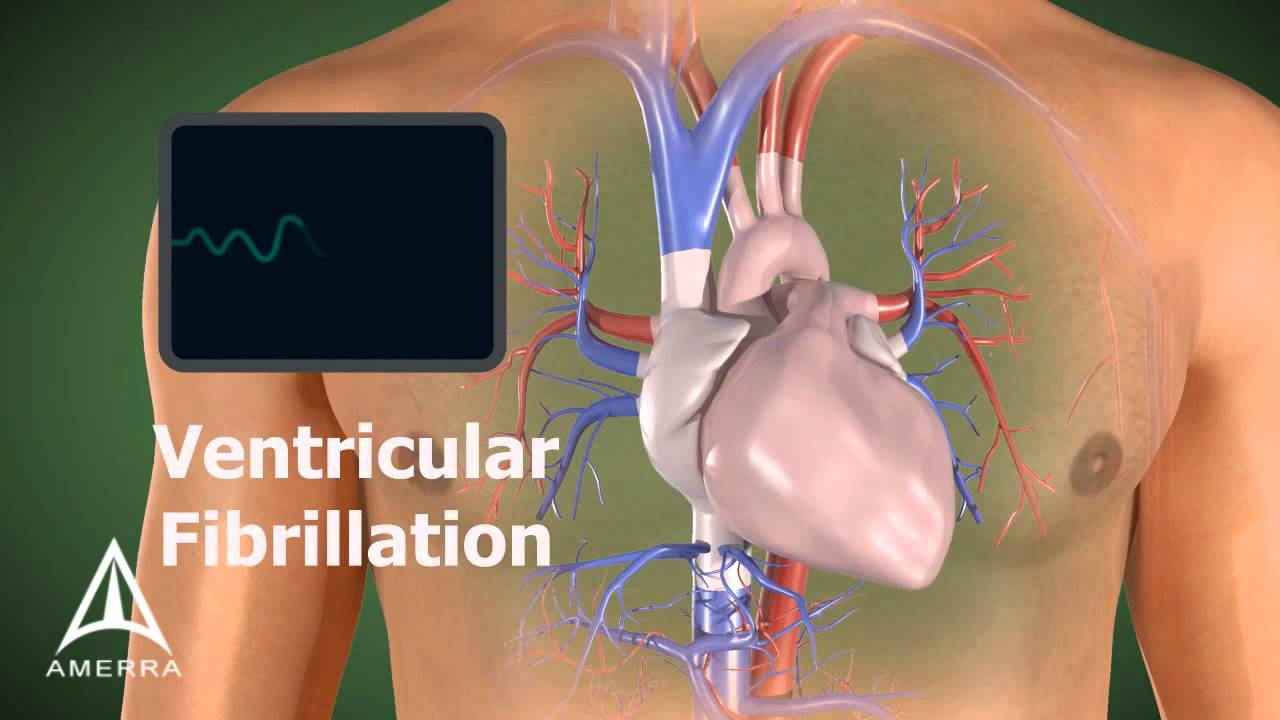 AED - 3D Medical Animation