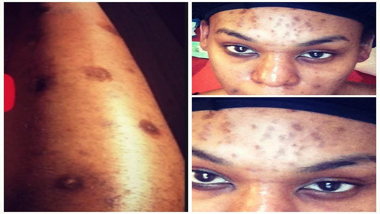 dark spots on body