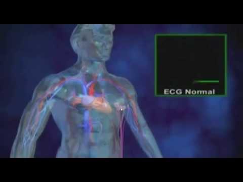 arythmie sensations de pulsations palpitations