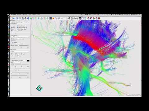 3D Rendering of Fiber Tracts in Diffusion Weighted MRI