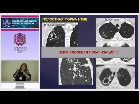 И.А. Соколина - Нетуберкулезные легочные микобактериозы