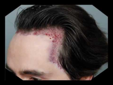 hair-transplant-part-5