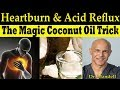 The Magic Coconut Oil Trick for Heartburn & Acid Reflux - Dr Alan Mandell, DC