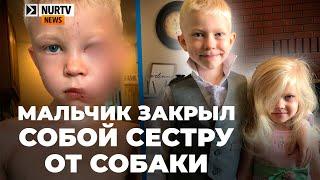 6-летний мальчик закрыл собой сестру от нападения собаки, которая разорвала ему лицо
