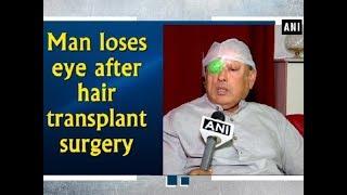Man loses eye after hair transplant surgery - Telangana News