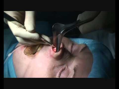 Ринопластика, пластика носа - клиника БиКод