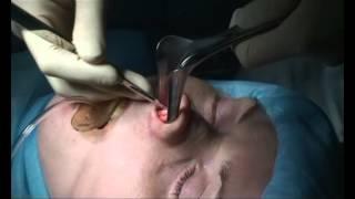 Ринопластика, пластика носа - клиника БиКод(Ринопластика (Пластика носа) в клинике пластической хирургии и косметологии - БиКод Подготовка, операция,..., 2012-12-19T09:40:50.000Z)