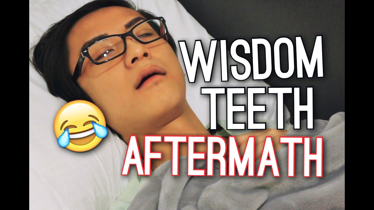 wisdom teeth aftermath flawlesskevin youtube