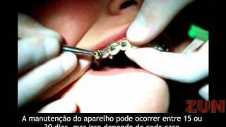 APARELHO DENTÁRIO FIXO PREÇO
