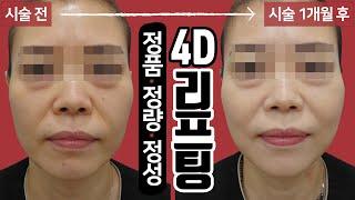 이제 3D아닌 4D리프팅! 시술 영상 톡스앤필 송파점