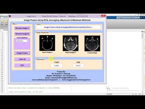 Matlab Code for Image Fusion Using PCA on MRI and CT Image