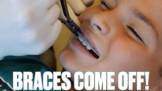 GETTING BRACES OFF FOR THE FIRST TIME | BRACES REMOVED | TAKING BRACES OFF | BEFORE AND AFTER BRACES
