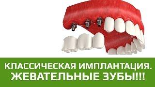 Двухэтапная имплантация с отсроченной нагрузкой. Восстановление концевого дефекта(Имплантация с отсроченной нагрузкой - это классический метод имплантации, она же двухэтапная имплантация...., 2015-06-22T16:46:37.000Z)