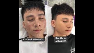 Mỹ phẩm Almonds Người thật việc thật