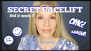 "My ""Facelift"" 😉 Experience 