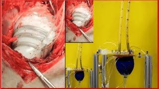 Soft Robot helps the Heart beat | QPT