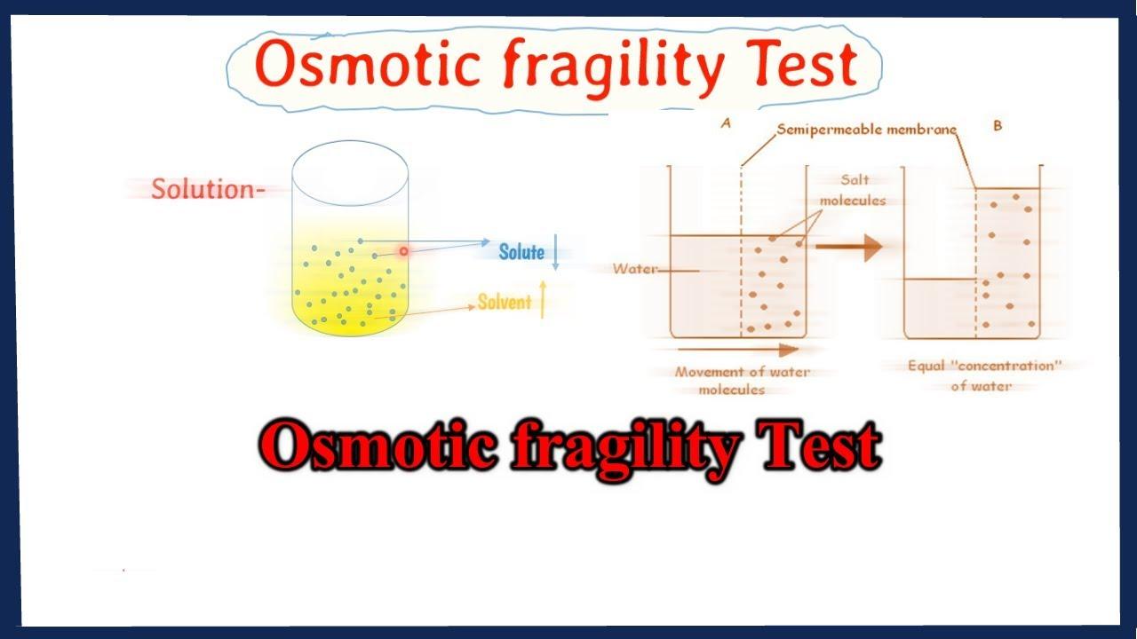 Download osmotic fragility test    osmotic fragility curve interpretation    full explained