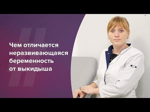 Неразвивающаяся беременность и выкидыш. Акушер-гинеколог. Ольга Прядухина. Москва