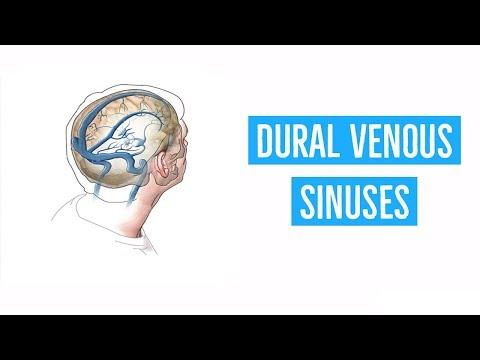 dural-venous-sinuses