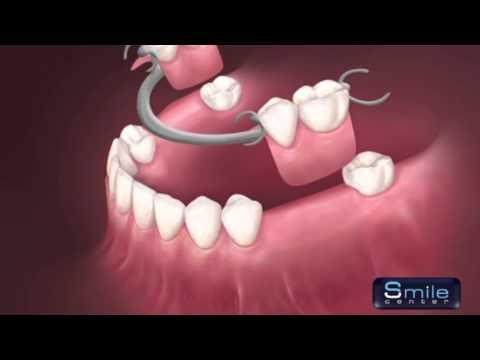 Removable denture Beirut Lebanon - Dentist Lebanon