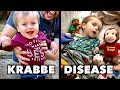 Download KRABBE DISEASE: Emmett's Story (He Doesn't Have Much Time) |  Dr. Paul in Mp3, Mp4 and 3GP
