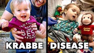 KRABBE DISEASE: Emmett's Story (He Doesn't Have Much Time)    Dr. Paul