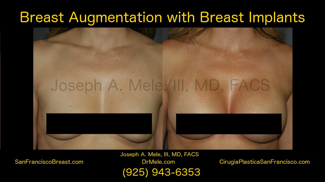 Breast Augmentation San Francisco Bay Area with Breast Implants - 16