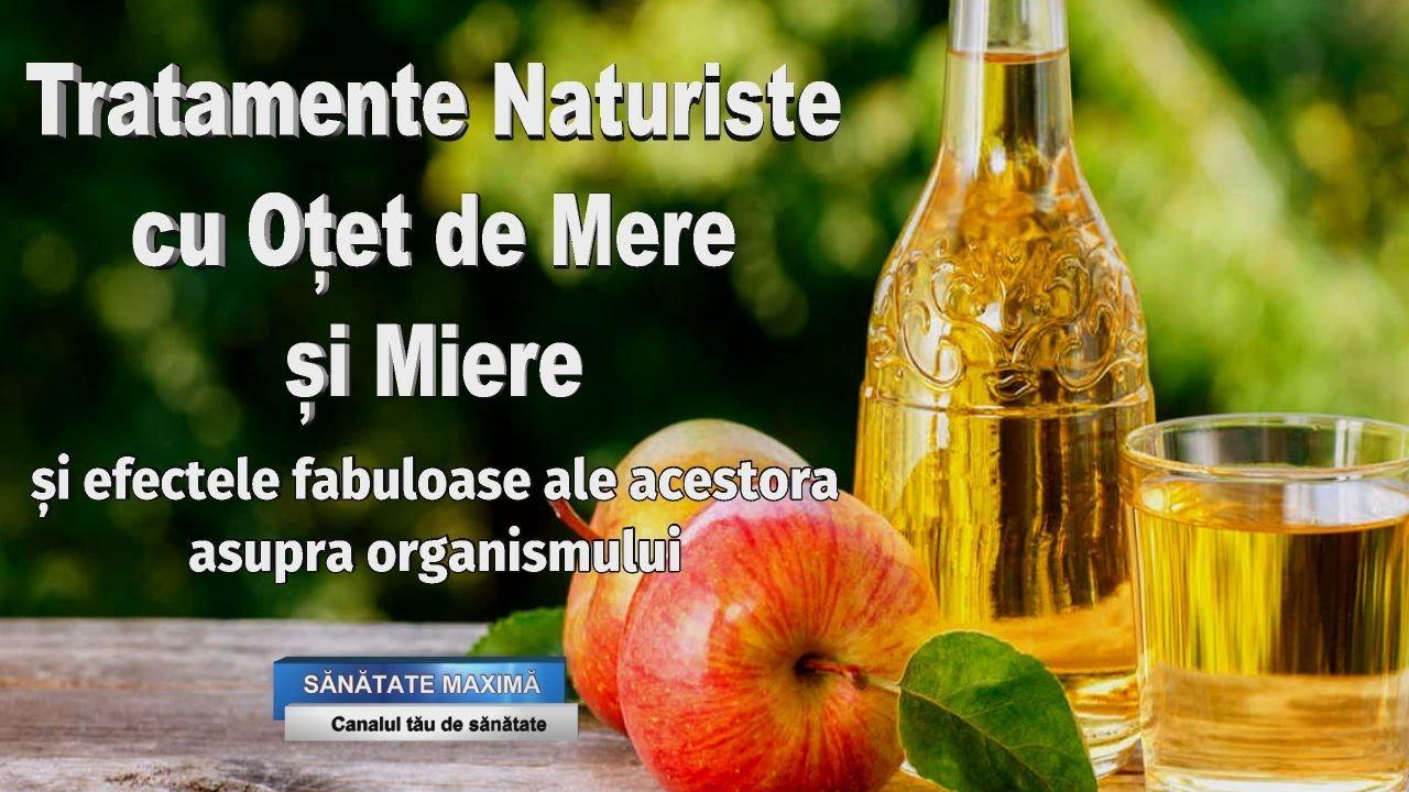 tratament cu varicoză oțet de mere)