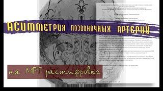 АСИММЕТРИЯ ПОЗВОНОЧНЫХ АРТЕРИЙ на расшифровке МРТ головного мозга
