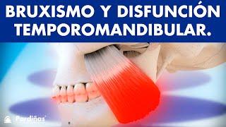 Disfunción temporomandibular y bruxismo ©