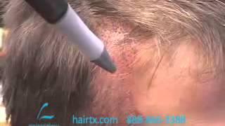 Hair Transplant Recipient Sites 14: Temple Reconstruction