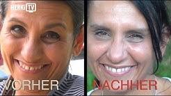 TV: Medical Beauty Cologne - neuartige Botox Behandlung, sensationelle Ergebnisse
