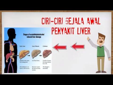 Ciri Ciri Gejala Awal Penyakit Liver Youtube