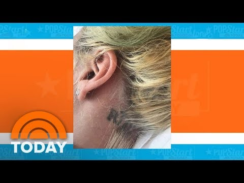 Lady Gaga Hospitalized, Cancels Brazil Concert | TODAY