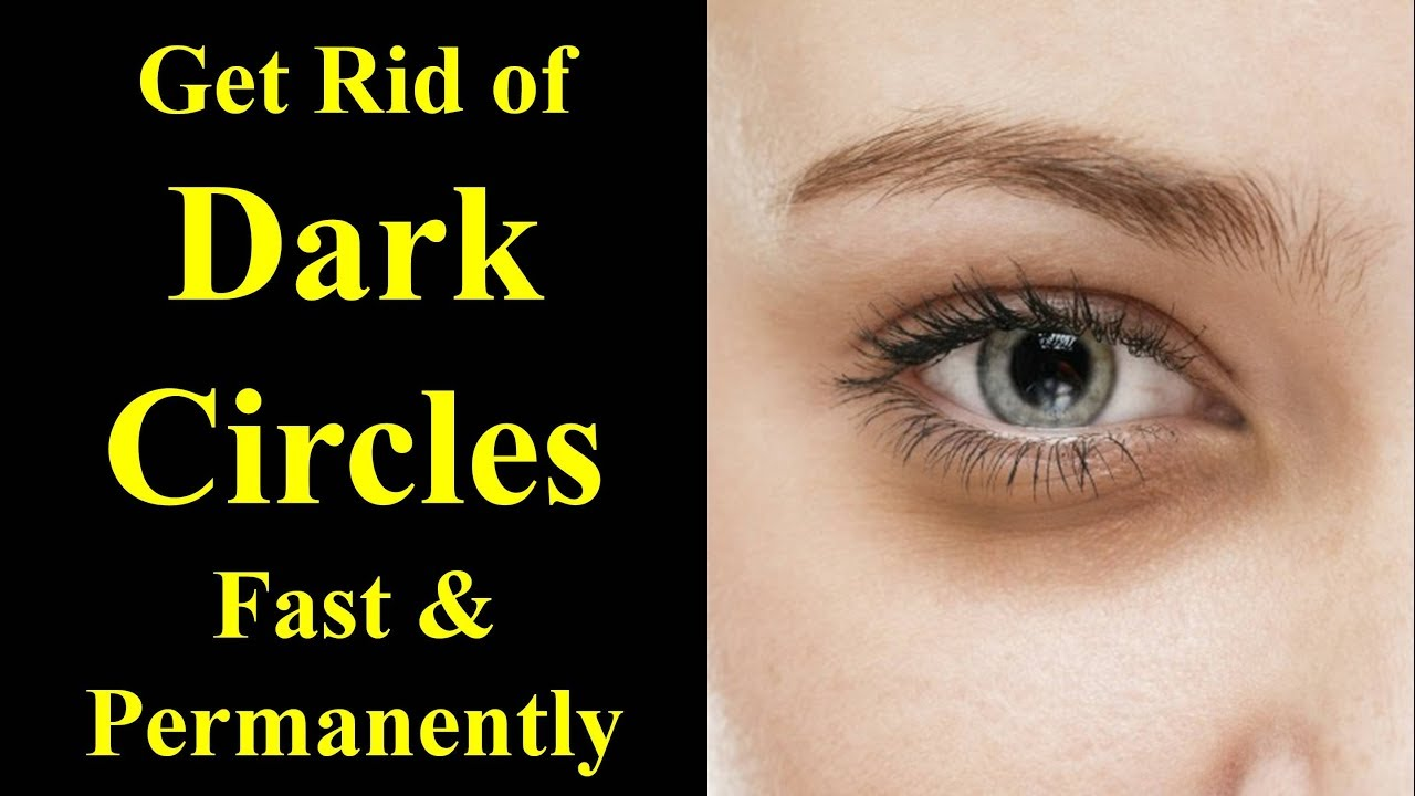 How to Get Rid of Dark Circles || Cause and Treatment of ...