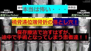 手首骨折(橈骨遠位端骨折)の治療途中で手術になる事例 全国民必見!