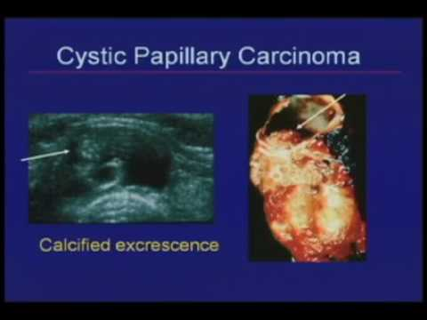 Thyroid Nodules Sonographic Evaluation And Biopsy Recommendations