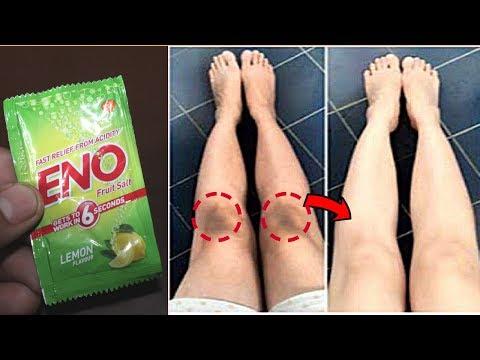 5 मिनिट - Dark Elbows, Knees or Neck के कालेपन से छुटकारा पाए | Whiten Dark Elbows, Knees with Eno