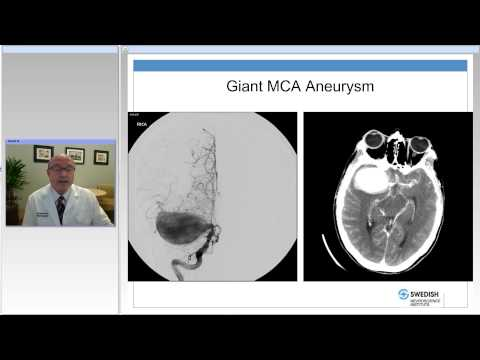 The Many Faces of Middle Cerebral Artery Anurysms
